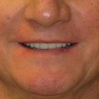 patrick-after-smile